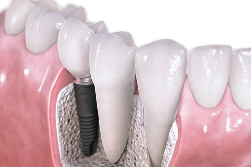 Dentus perfectus - zubni implantati