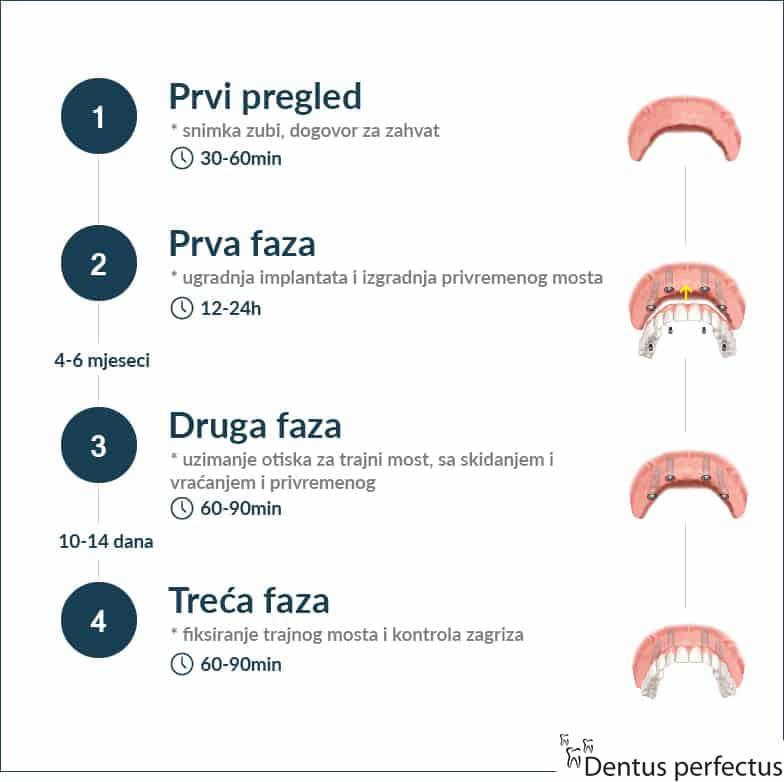 Dentus perfectus - all on 4 - faze ugradnje