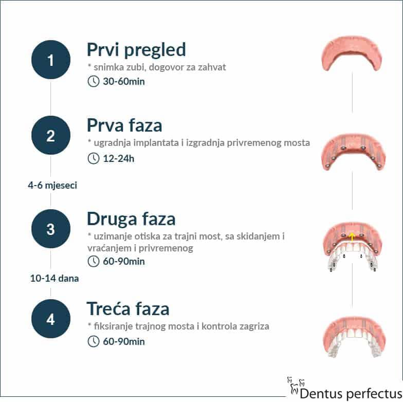 Dentus perfectus - all on 6 - faze ugradnje