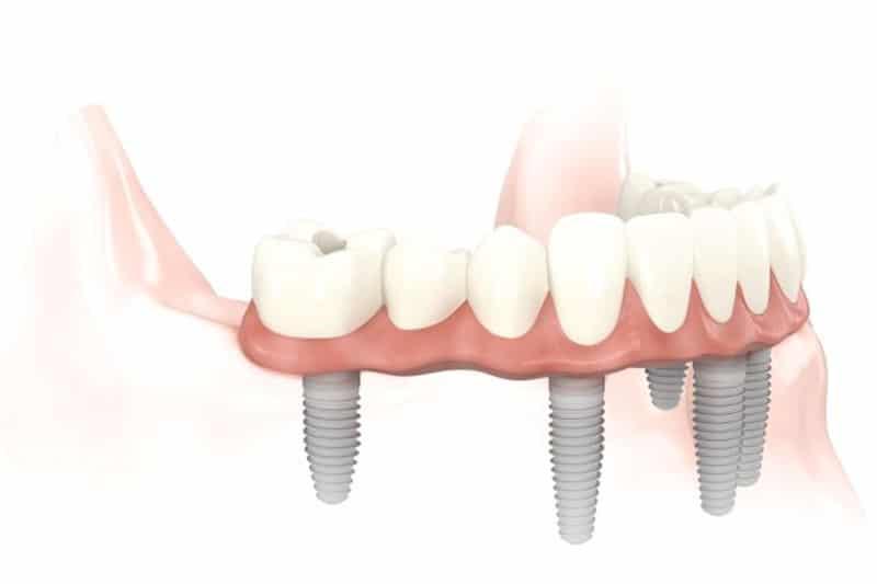 Dentus perfectus - implantologija - all on 6