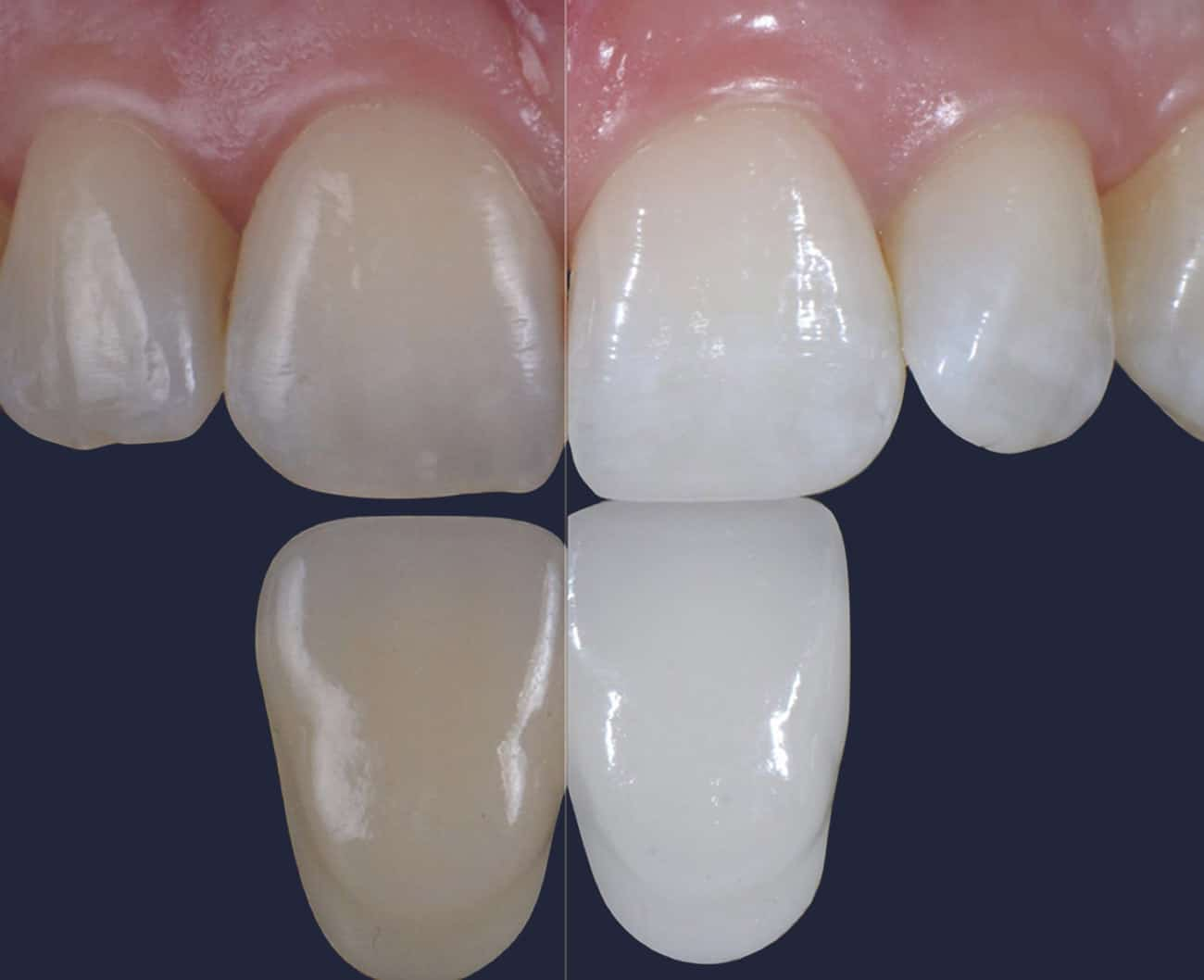 Dentus perfectus - izbjeljivanje zubi Beyond