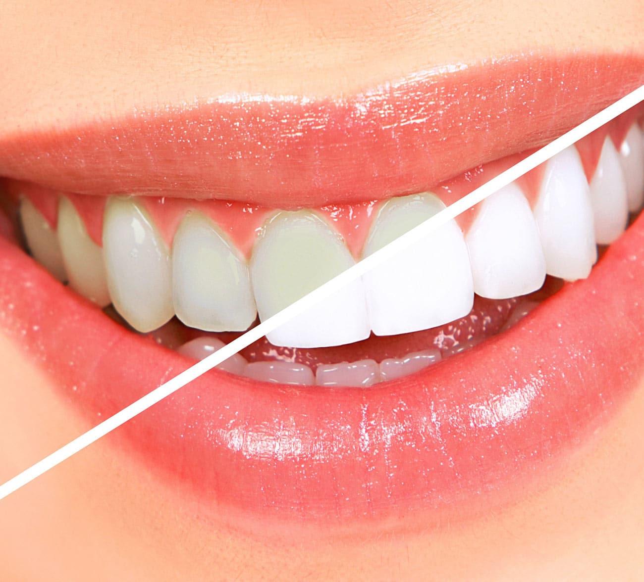 Dentus perfectus - izbjeljivanje zubi prije i poslije