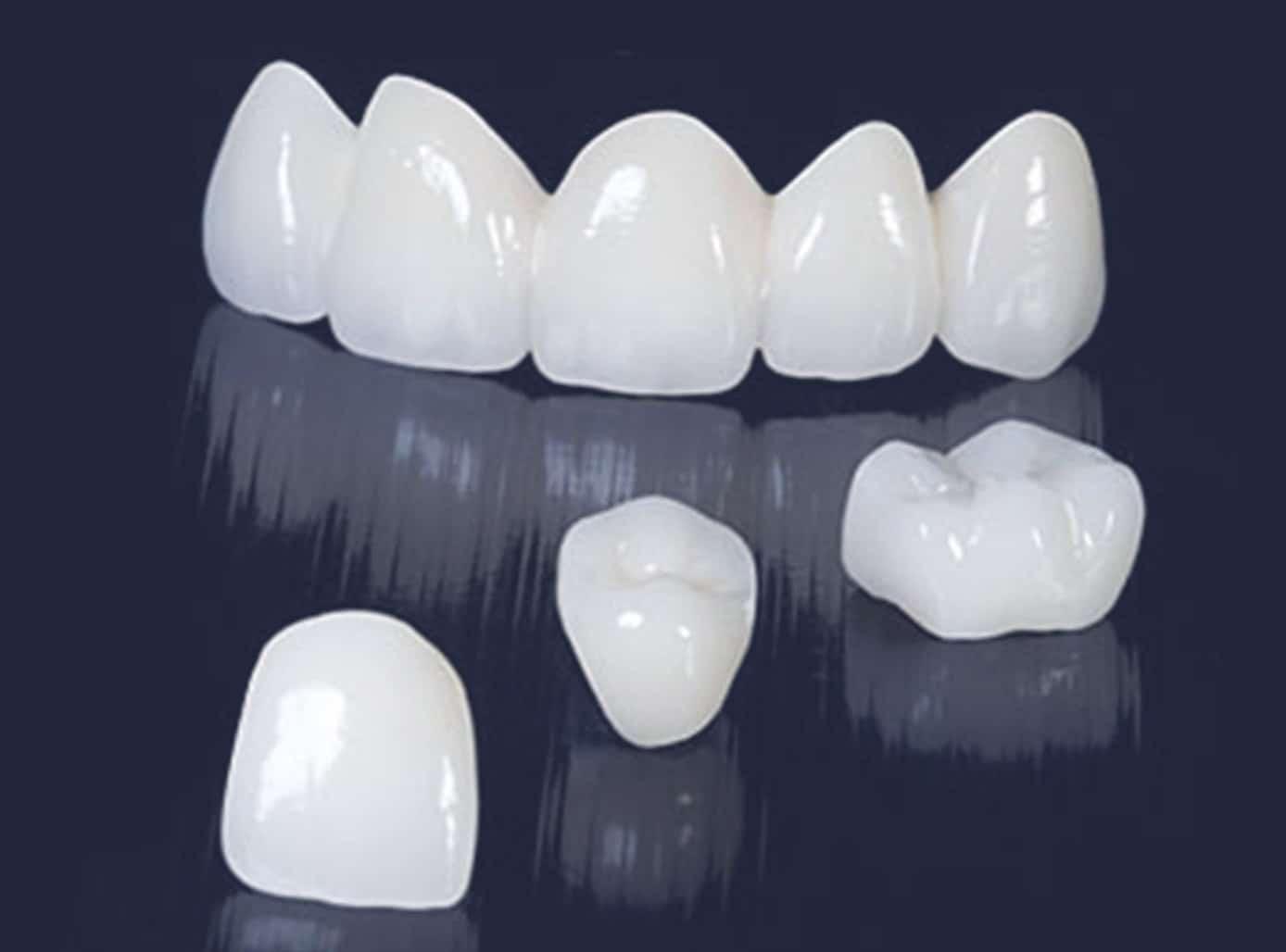 Dentus perfectus - metalkeramičke krunice