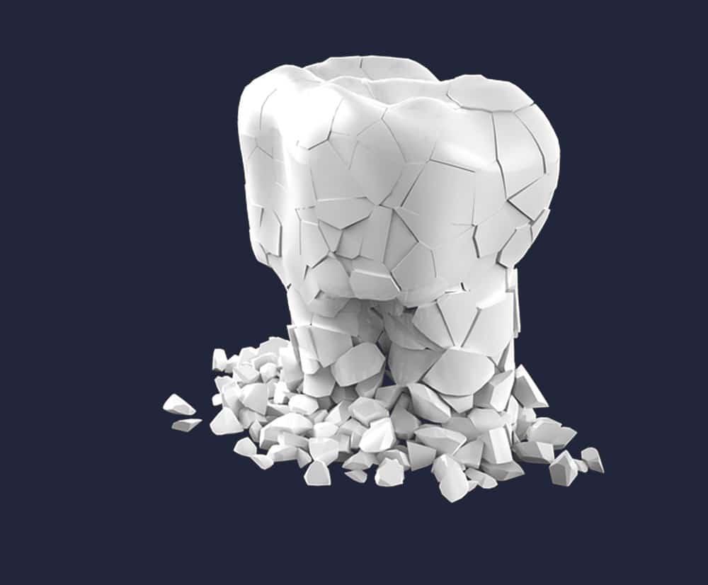 Dentus perfectus - popravak zuba