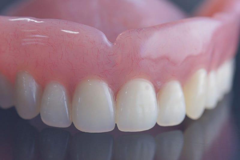 Dentus perfectus - protetika - zubne proteze