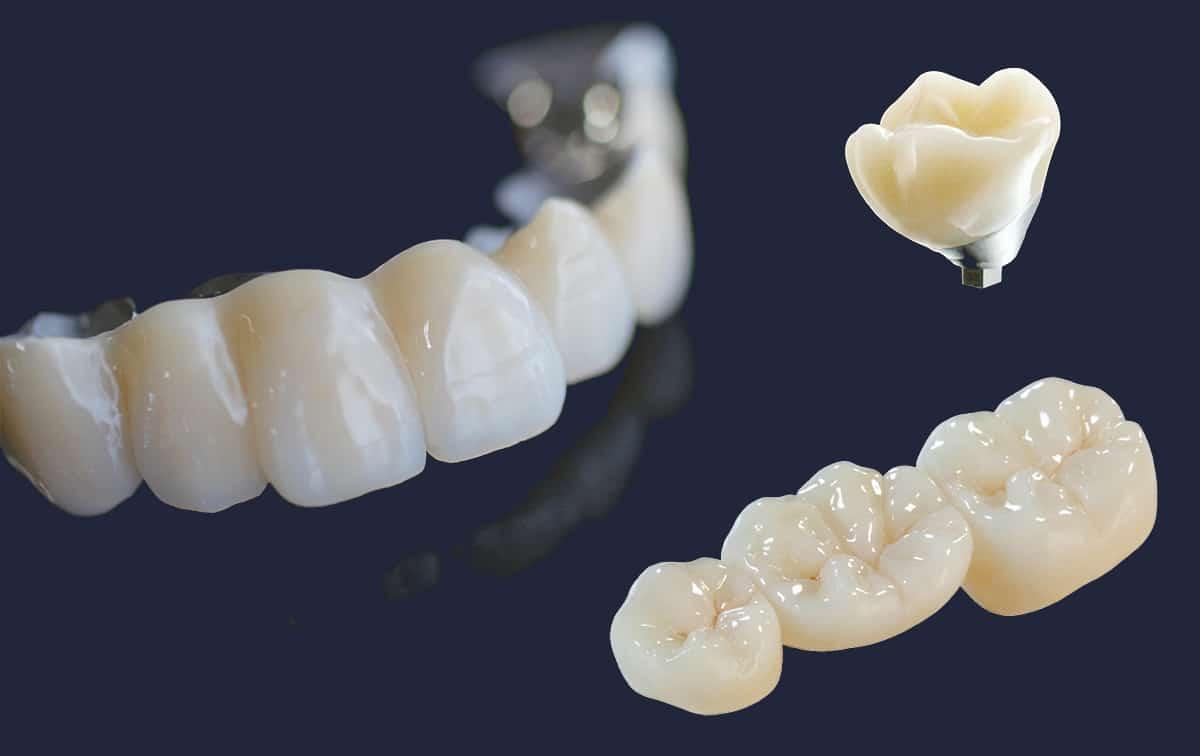 Dentus perfectus - protetika