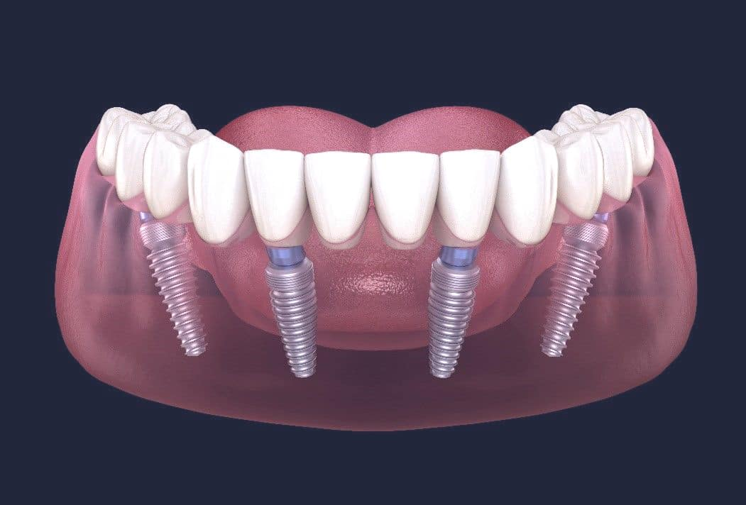 Dentus perfectus - što je all on 4 ?
