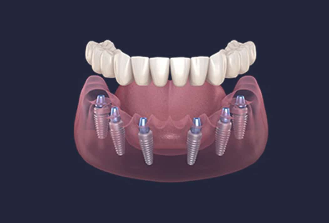 Dentus perfectus - što je all on 6 ?
