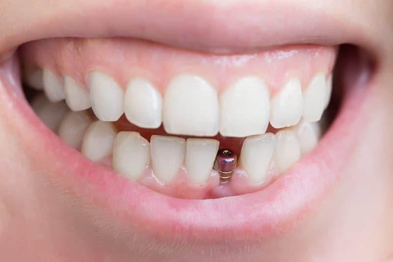 Dentus perfectus - ugradnja implantata - postupak