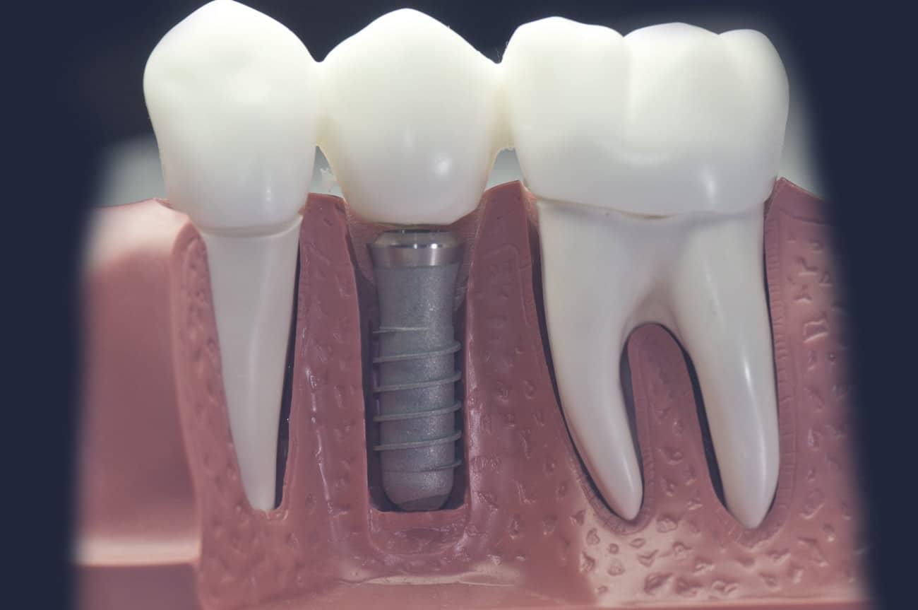 Dentus perfectus - zubne krunice na implantatima