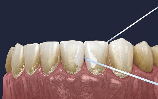Dentus perfectus - zubni konac