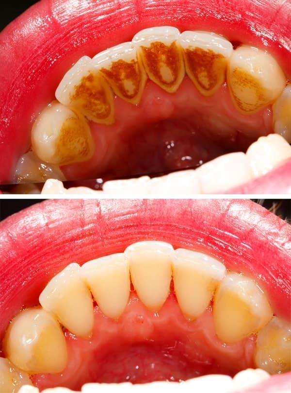 Dentus perfectus - zubni kamenac - prije i poslije čišćenja