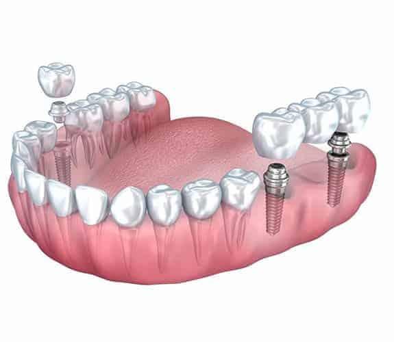 Dentus perfectsu - most na implantatima