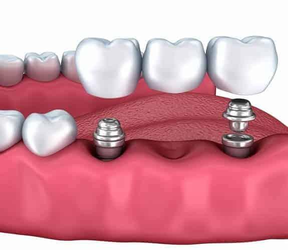 Dentus perfectus -most na implantatima