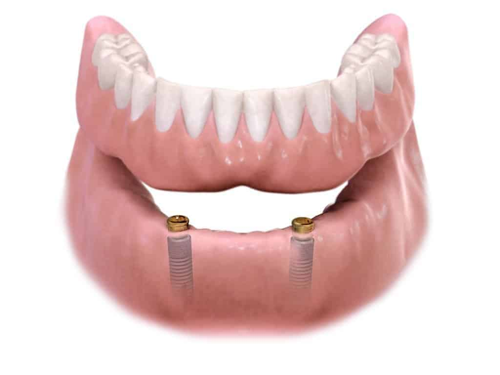 Dentus perfectus - zubne proteze