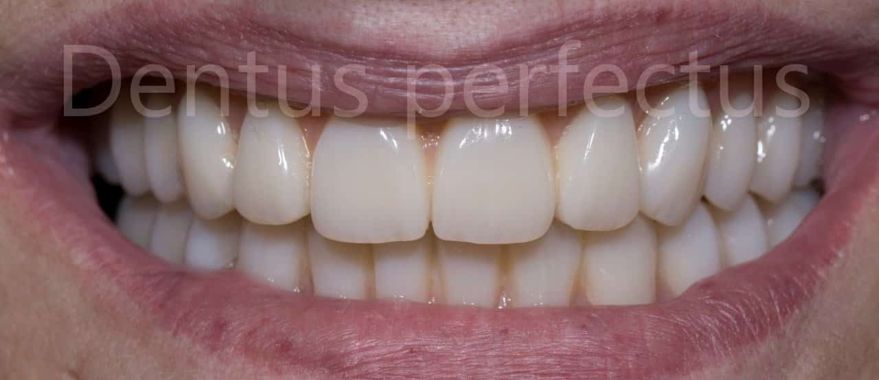 Most na 4 implantata - Dentus perfectus