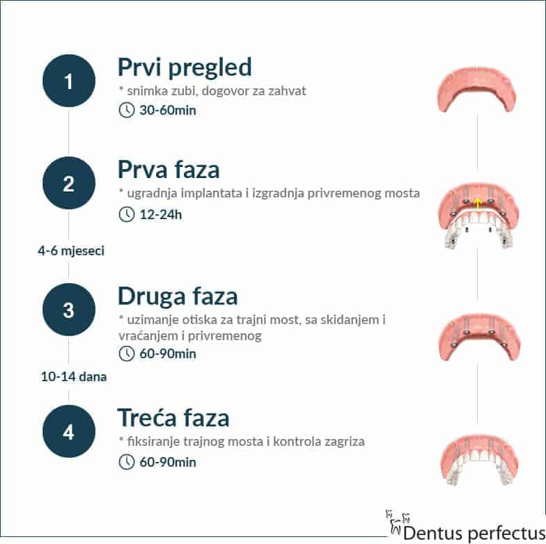 Most na 4 implantata - postupak -Dentus perfectus