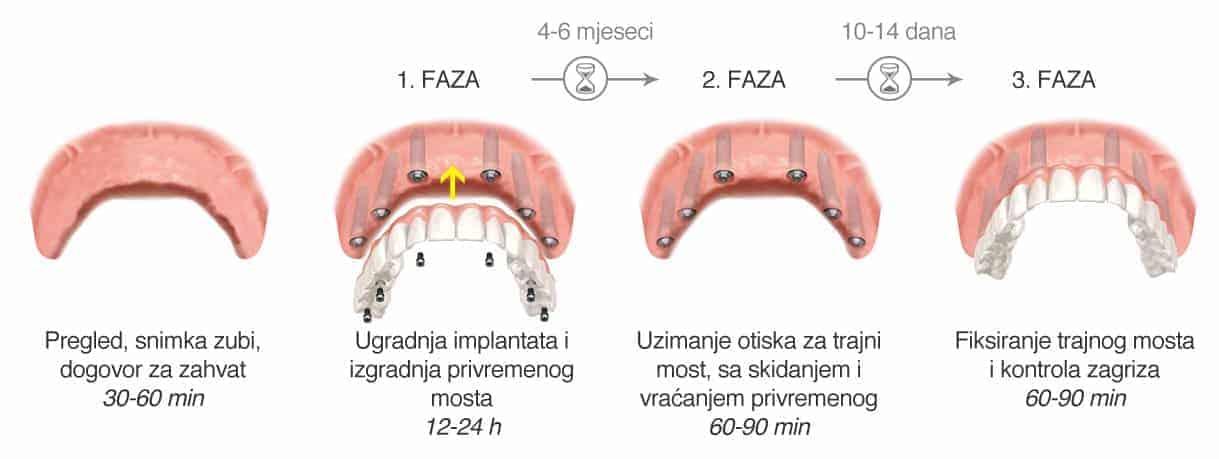 Most na 6 implantata - faze - Dentus perfectus