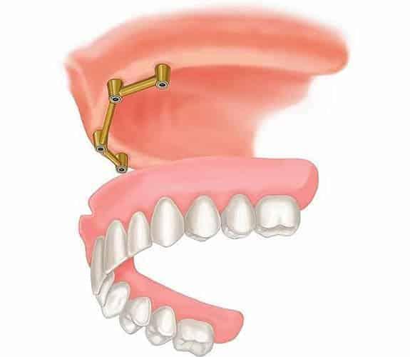 Zubna proteza 2-4 implantata 1 - Dentus perfectus