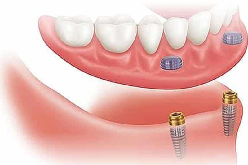 Zubna proteza 2-4 implantata - Dentus perfectus 1