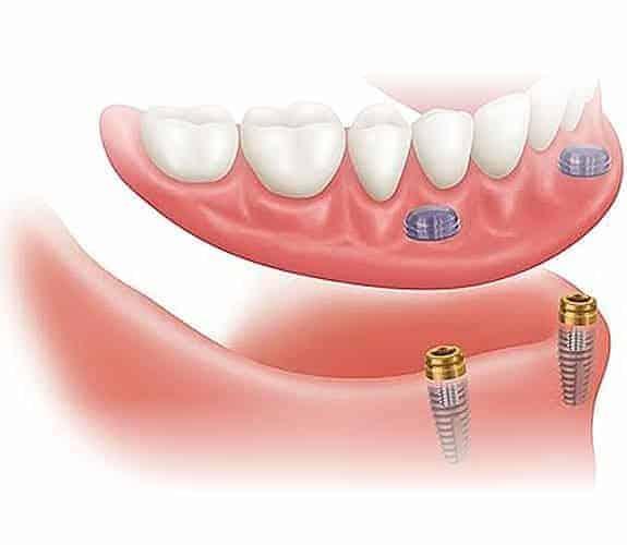 Zubna proteza 2-4 implantata - Dentus perfectus