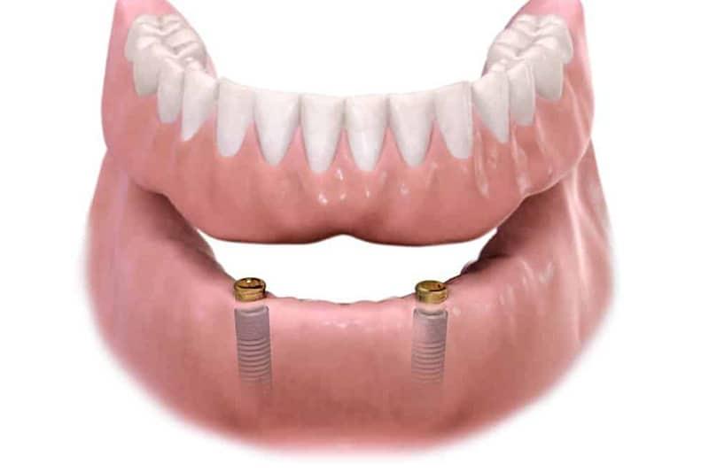 Zubne proteze 3 - Dentus perfectus